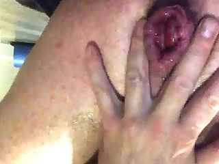Big Cock, Gaping Hole, HD, Prolapse,